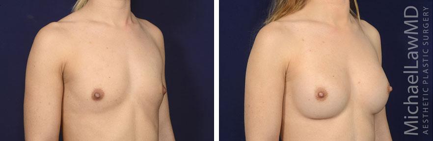 breastaug142-o