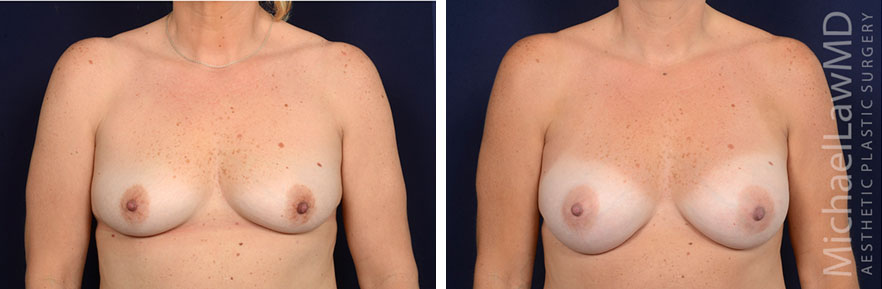 breastaug143-f