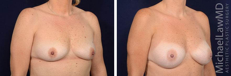 breastaug143-o