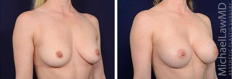breastaug153-b