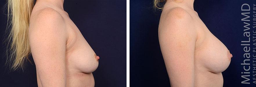 breastaug153-c