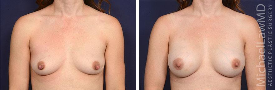 breastaug160-f