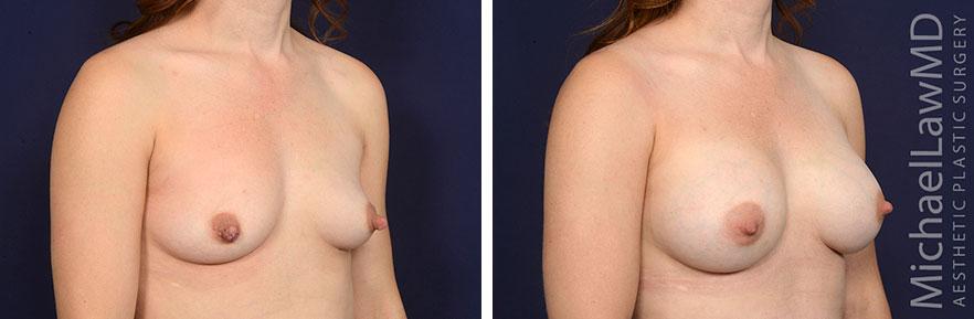 breastaug160-o