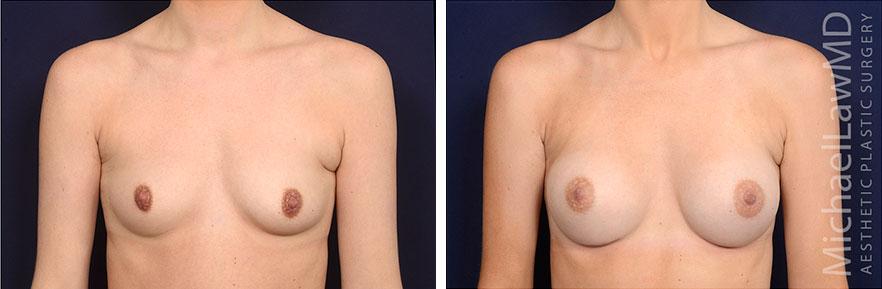 breastaug163-f