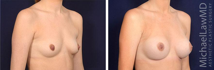 breastaug163-o