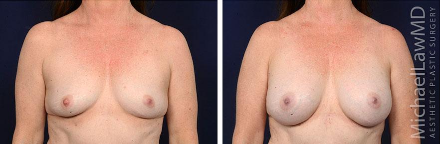 breastaug171-f