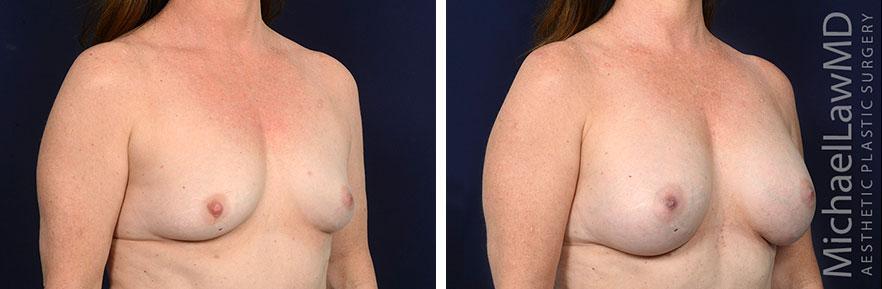 breastaug171-o