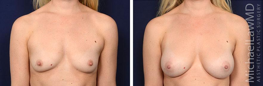 breastaug172-f