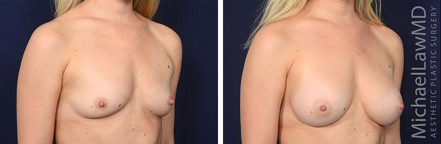 breastaug172-o