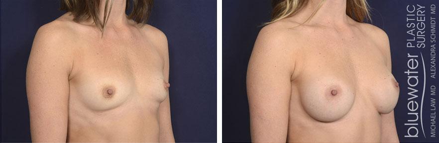 breastaug180b