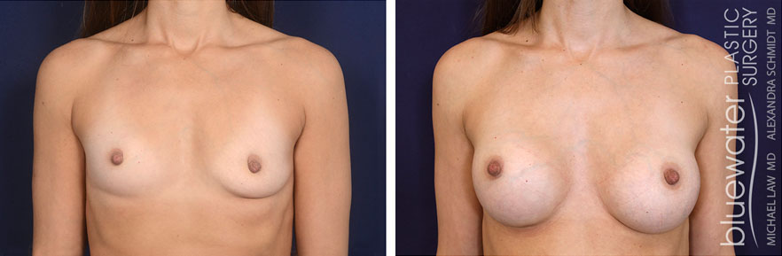 breastaug1a_3_15_21