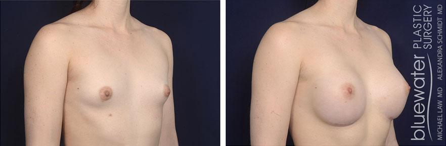 breastaug1b_12_7_20
