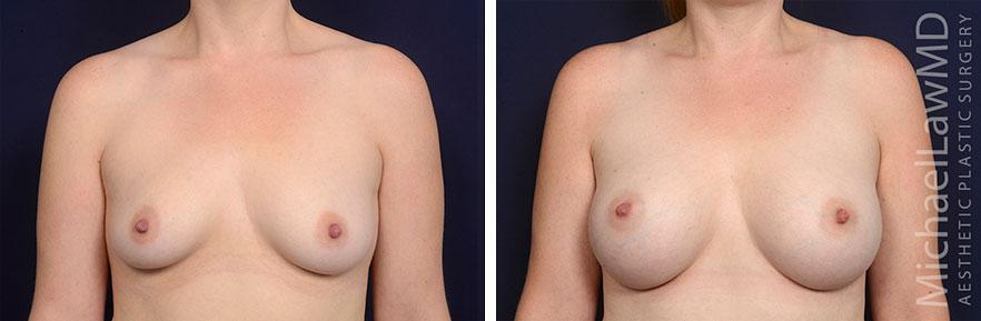 breastaug68-f