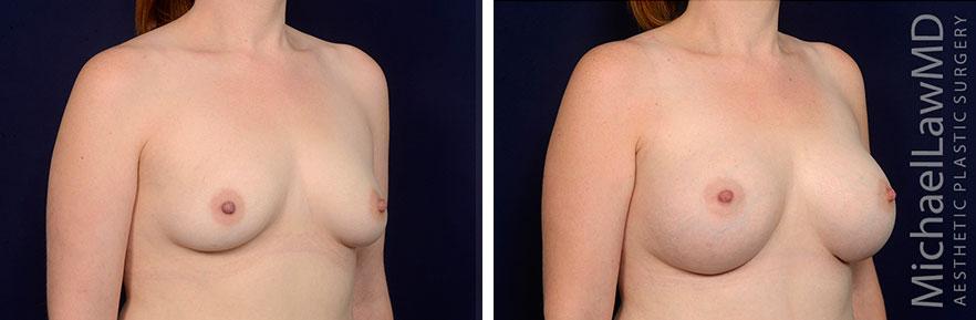 breastaug68-o