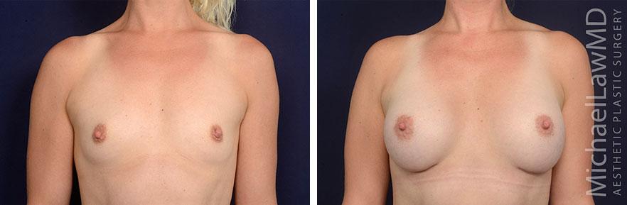 breastaug69-f
