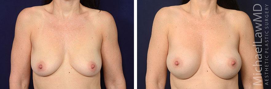 breastaug70-12mo-F