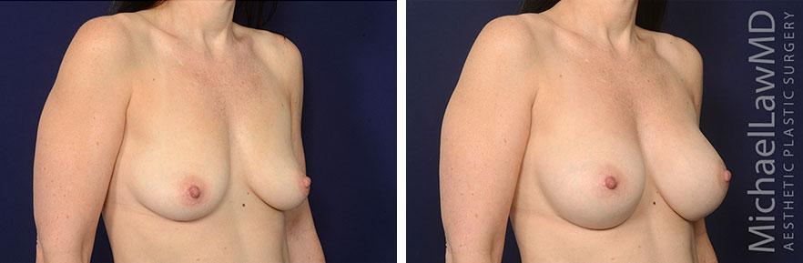 breastaug70-12mo-O