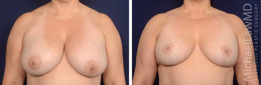 breast-implant-removal-6F