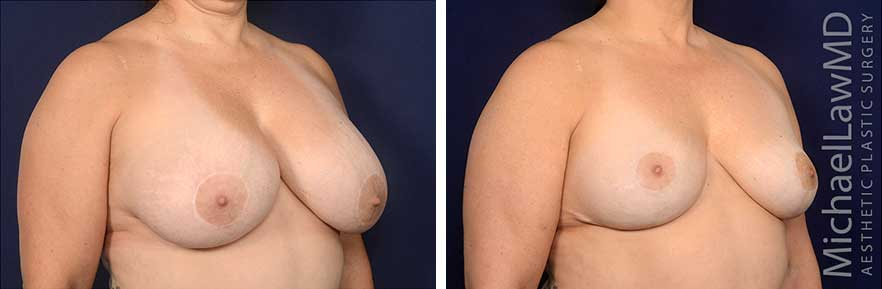 breast-implant-removal-6O