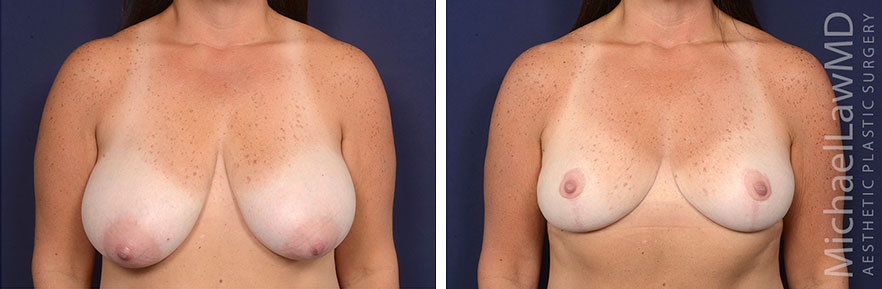 breast-lift-59-f