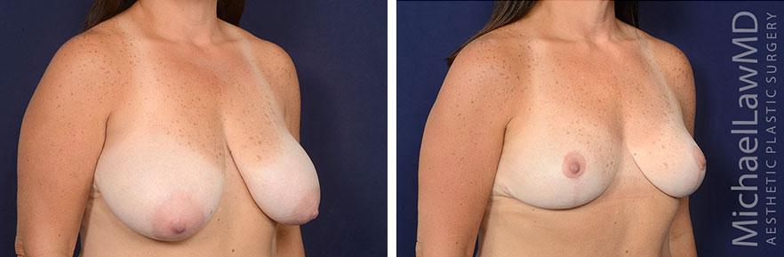 breast-lift-59-o