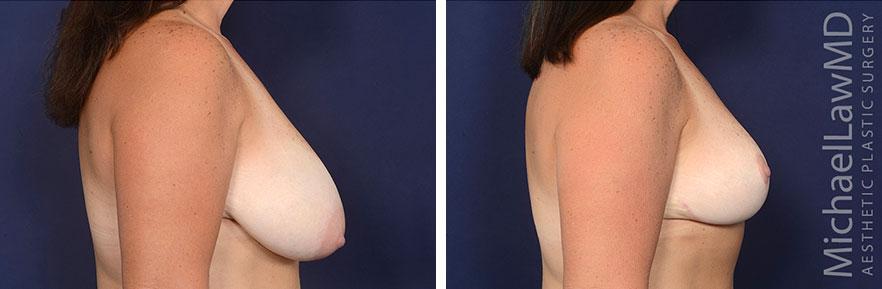 breast-lift-59-s