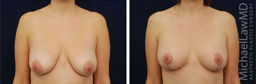 breastlift-10f