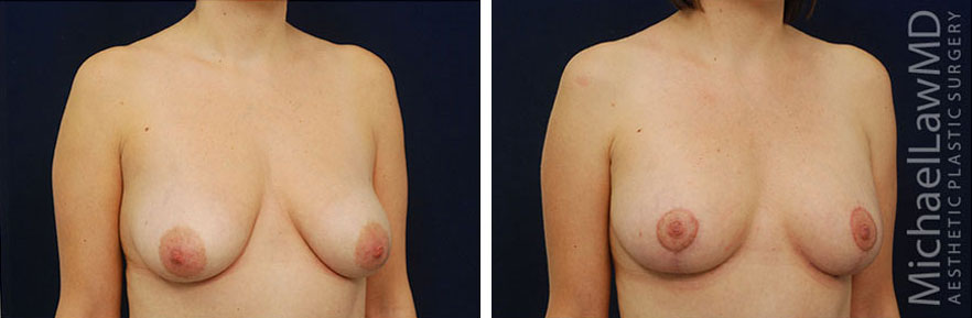 breastlift-10o