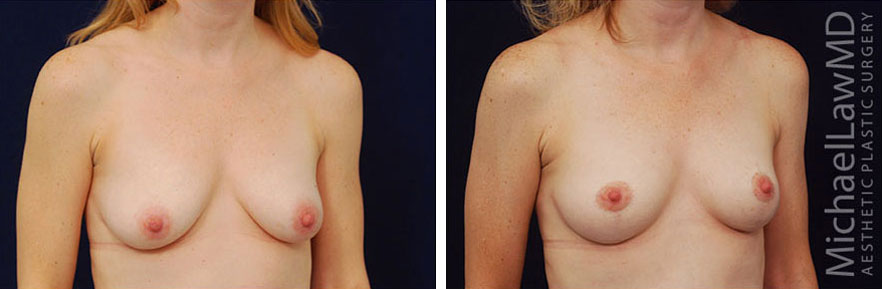 breastlift-12o