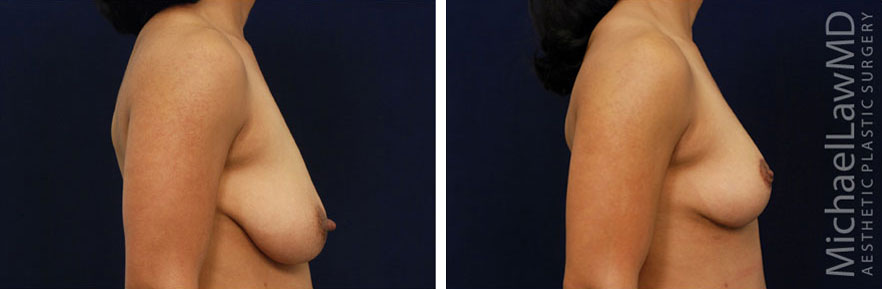 breastlift-13s