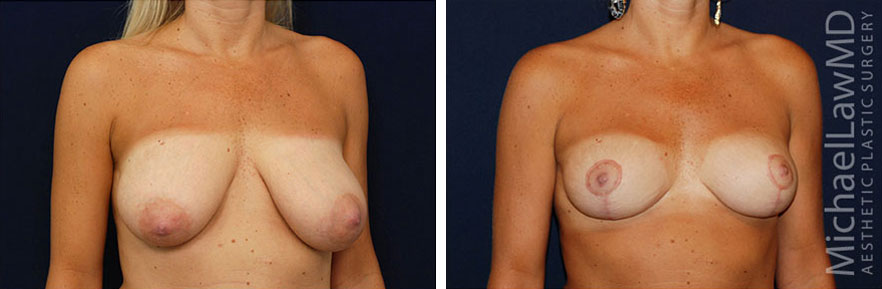 breastlift-15o
