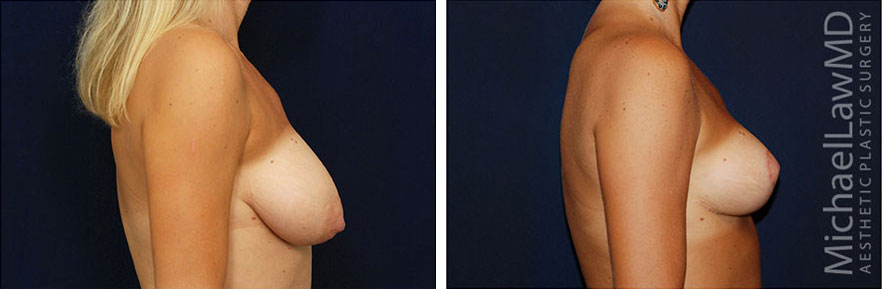 breastlift-15s