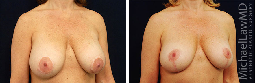 breastlift-17o