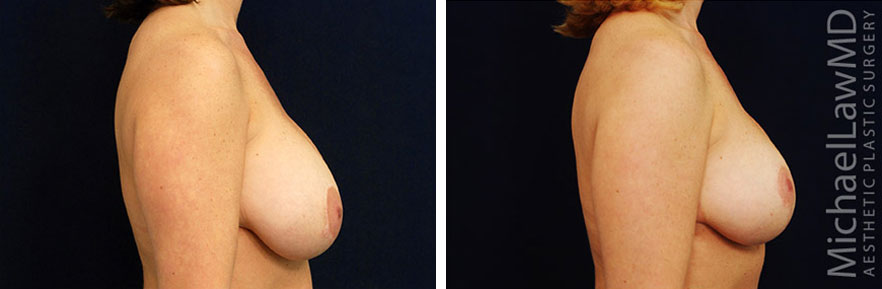 breastlift-17s