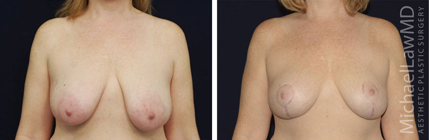 breastlift-20f