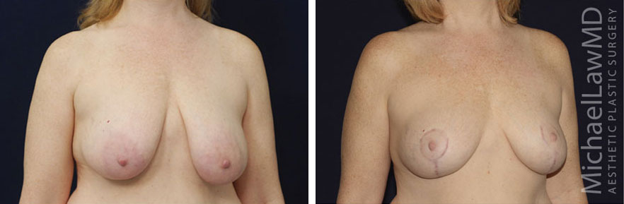 breastlift-20o