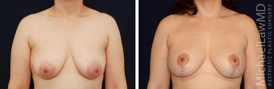 breastlift-21f