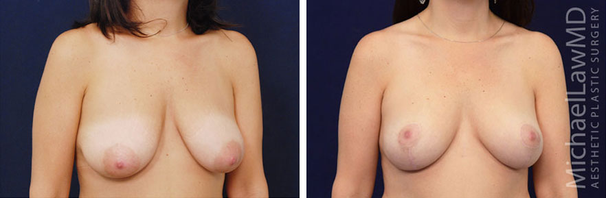 breastlift-22o