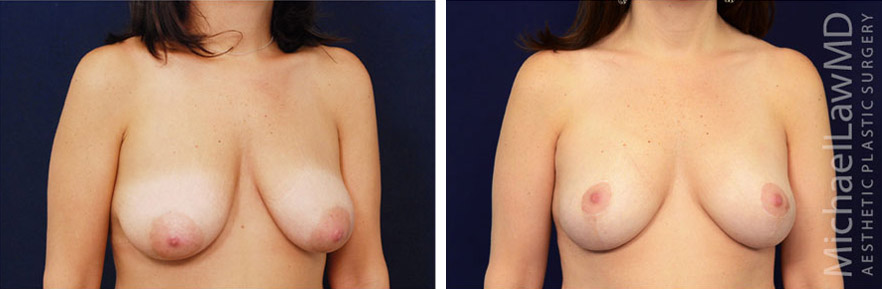 breastlift-27o