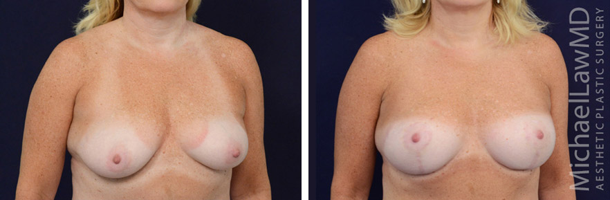 breastlift-28o
