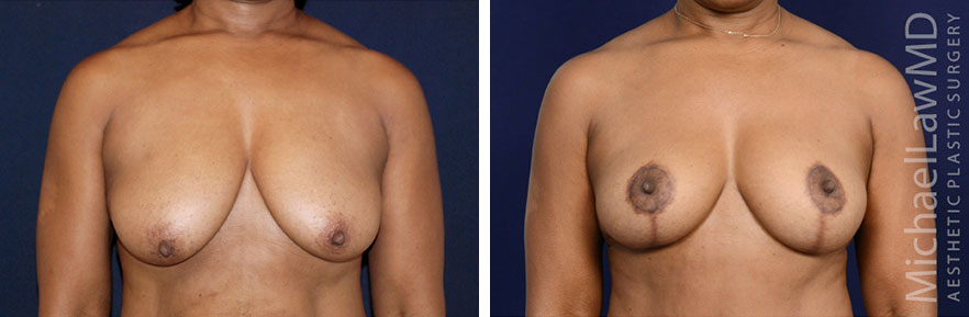 breastlift-31f-rev2