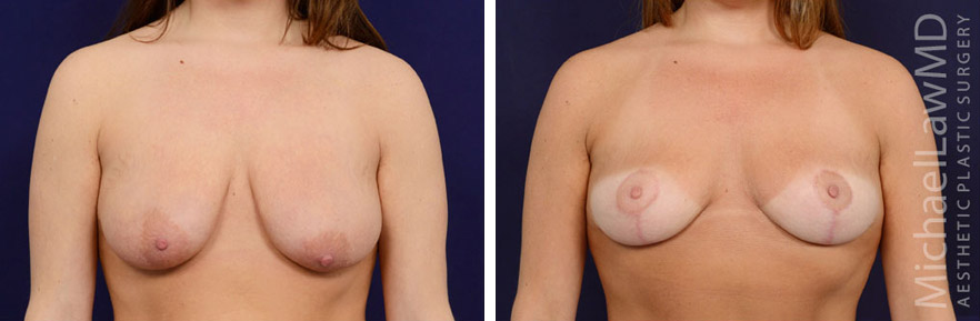 breastlift-35f