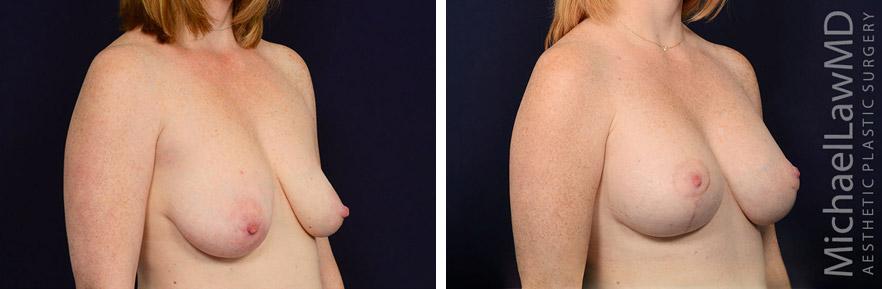 breastlift-40o