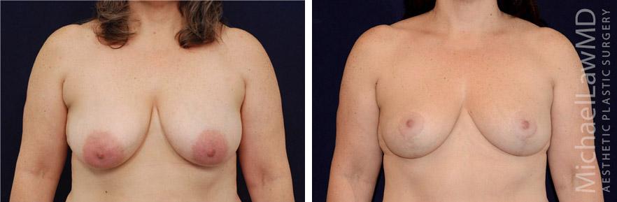 breastlift-42f