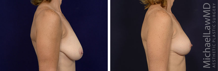 breastlift-43s