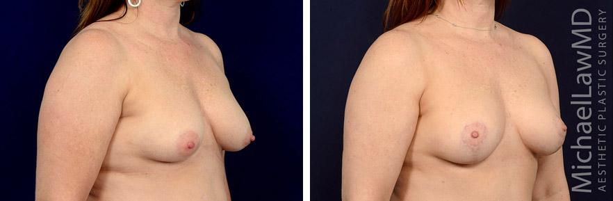 breastlift-44o