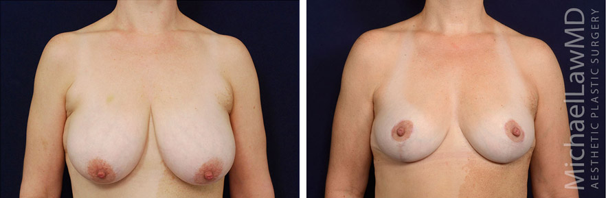 breastlift-49f