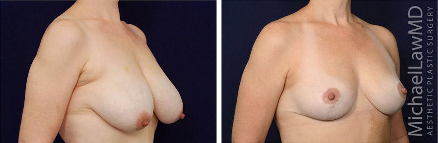 breastlift-49o