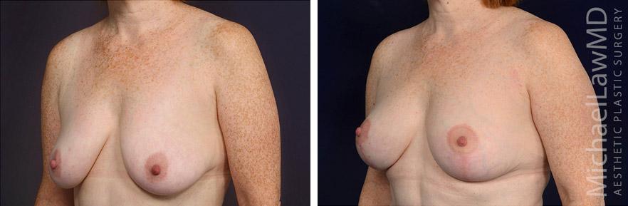 breastlift-51o