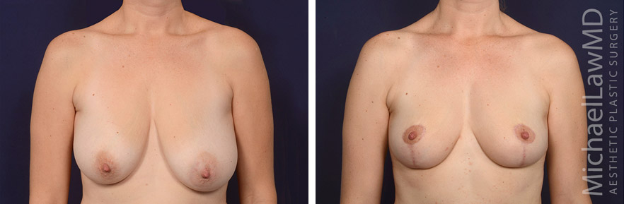 breastlift-53f